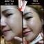 ครีมตบสิว Anti-Acne Massaging Cream By EVE's thumbnail 8