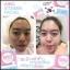 ไอโกะ วิตามินหน้าเงาเกาหลี Aiko Vitamin Facial thumbnail 6
