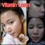 วิตามินเลเซอร์หน้าใส (Serum Vitamin Leser Beecute By BllnkBllnk) thumbnail 9