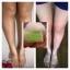 สบู่นัดชากลูต้าเมล่อน สีเขียว (Natcha Gluta Melon White Soap) thumbnail 9