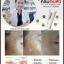 ครีมตบสิว Anti-Acne Massaging Cream By EVE's thumbnail 3