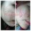 โลชั่นสูตรยับยั้งแบคทีเรีย & ฆ่าเชื้อสิว (Anti - Acne Lotion By Pcare Skincare) thumbnail 3