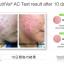 นูทริว่า เอซี ฟอร์ แอคเน่ (Nutriva AC For Acne) thumbnail 9