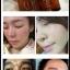 เซรั่มสลายฝ้า Kemtong skin care thumbnail 5
