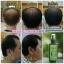 นีโอแฮร์สเปรย์ โลชั่นปลูกผม Neo Hair Lotion Hair Root Nutrients thumbnail 5