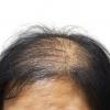 ทำไมต้องเลือกใช้ผงใส่ผม ปิดผมบาง เพิ่มผมหนา samson hair fiber
