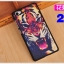 (พรีออเดอร์) เคส Vivo/X5 Pro-ฝาหลังลายการ์ตูน thumbnail 27