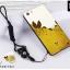 (พรีออเดอร์) เคส Oppo/A71-เคสลายการ์ตูน พร้อมสายคล้องคอ+แหวนคล้องนิ้ว thumbnail 10