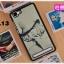 (พรีออเดอร์) เคส Vivo/X5 Max-เคสแข็งลายการ์ตูน thumbnail 19