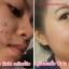 เซรั่มดีเฟส เคลียร์สิว Dee Face Clear Acne Serum ขวดละ 190 บาท ขายเครื่องสำอาง อาหารเสริม ครีม ราคาถูก ของแท้100% ปลีก-ส่ง thumbnail 2