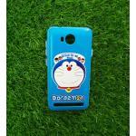 TPU ลายเส้นนูนดอนเรโม่กับพวกพ้อง #2 Huawei Y3II(Y32)