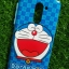 TPU ลายเส้นนูนดอนเรโม่ยิ้มหวาน(ขอบสีฟ้า) Huawei GR5(2017)(6X) thumbnail 4