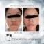 CASSIEY Stem cells Mask,โบท็อกหน้าเด้งใสในข้ามคืน ไม่ต้องฉีด แค่มาร์สหน้า thumbnail 6